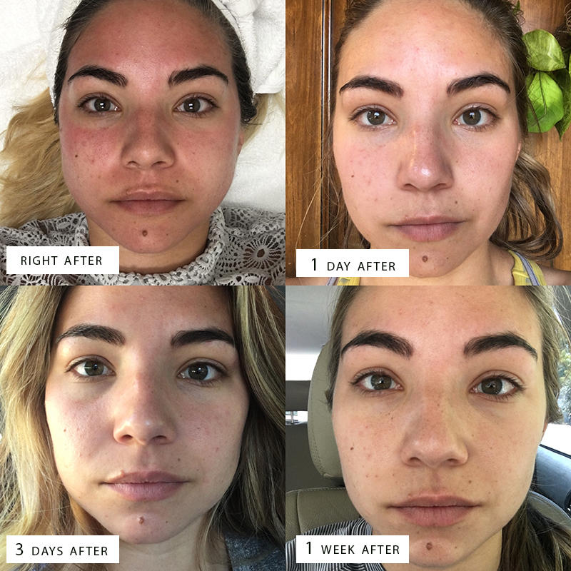 My Final Review Of Microneedling With Prp After 3 Treatments Lauryncakes