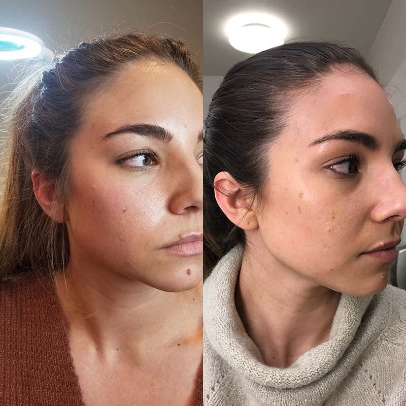 My Experience Receiving Botox For Tmj Lauryncakes